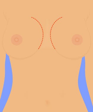 Breast_Augmentation_opener_Anna_Sudit