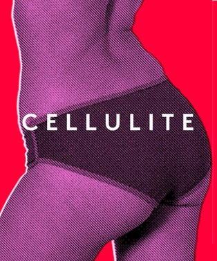 Cellulite_460x552