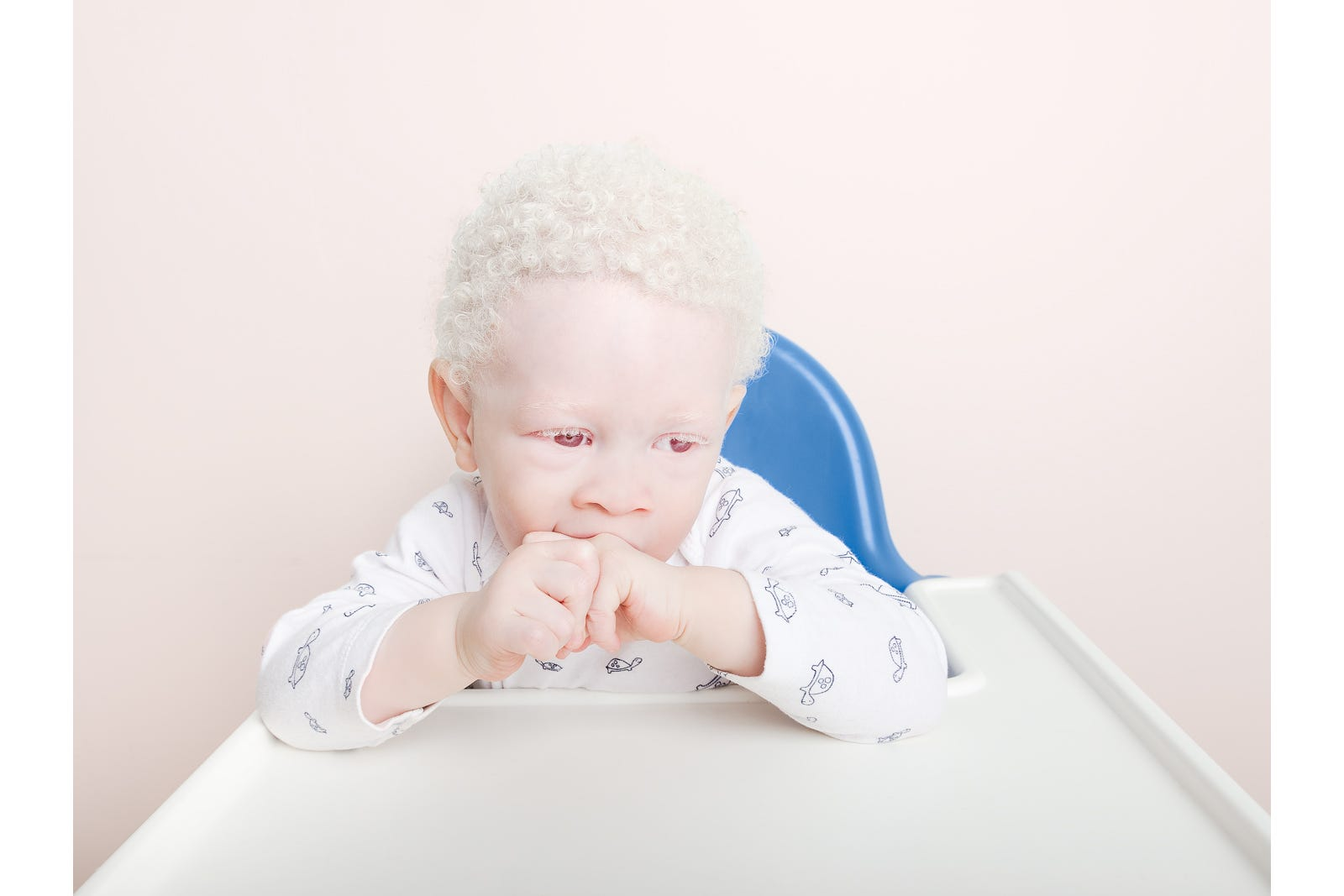 term paper on albinism So far, scientists have had some success in correcting patches of depigmented skin and hair in mice, but they are a long way from translating this research to humans what animals, besides humans, can be albinos any animal that has melanocytes can get albinism that means virtually all mammals.