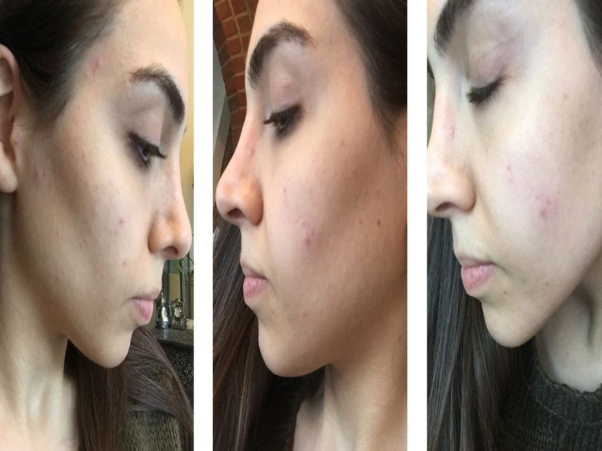 Best skin care routine for oily skin uk