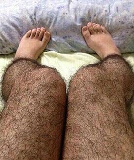 hairy leg op