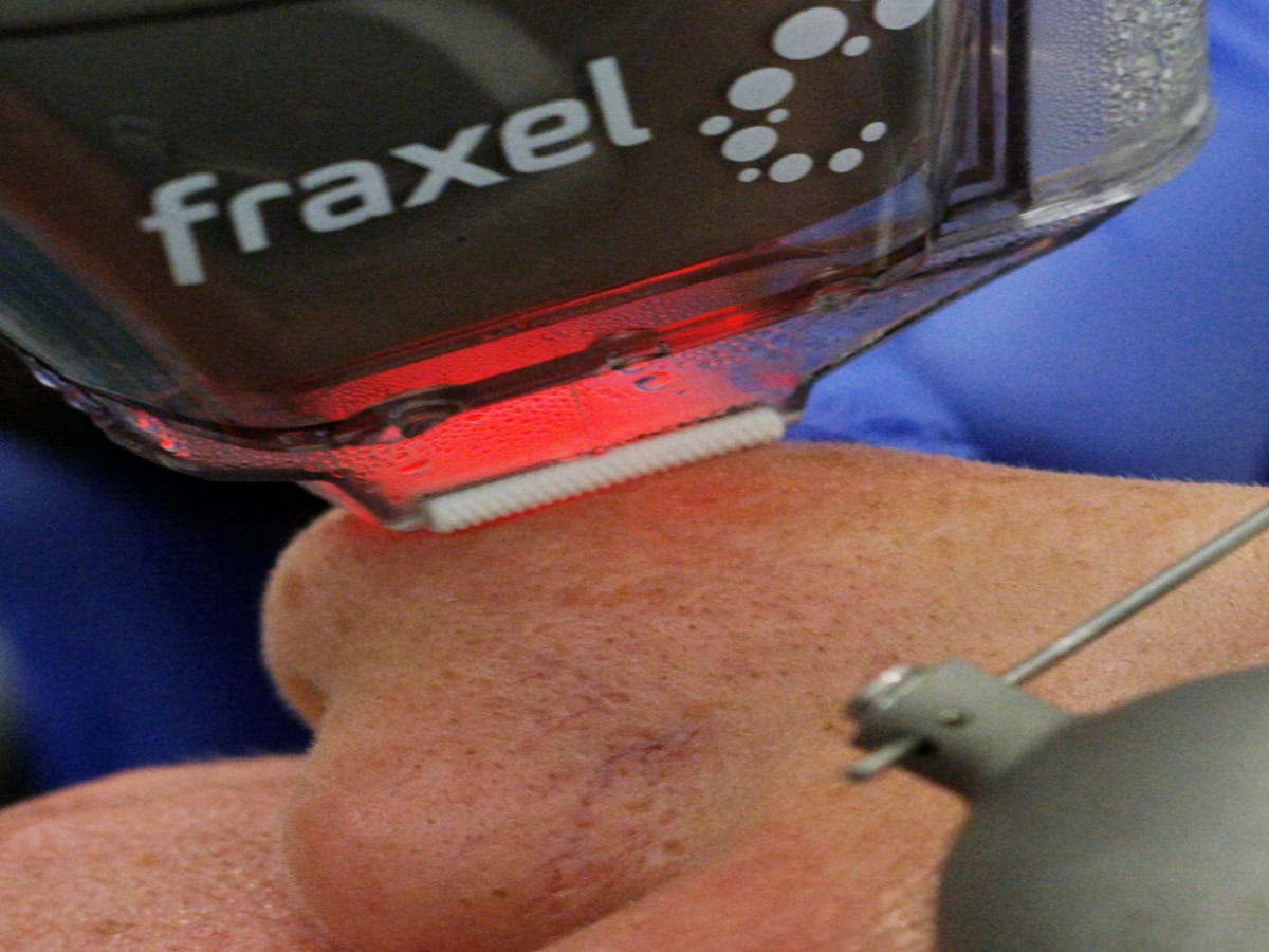 What Lasering Off The Top Layer Of Your Skin Looks Like Up Close