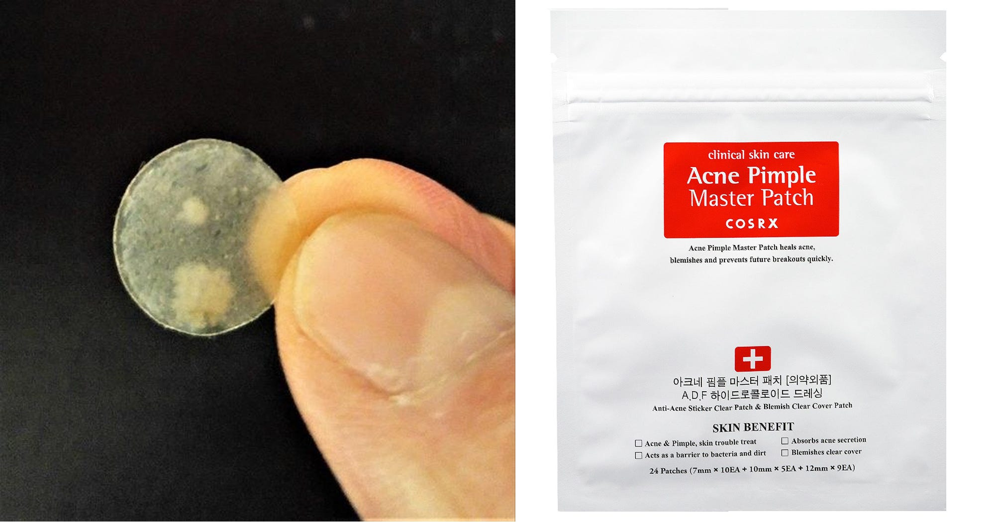 acne stickat