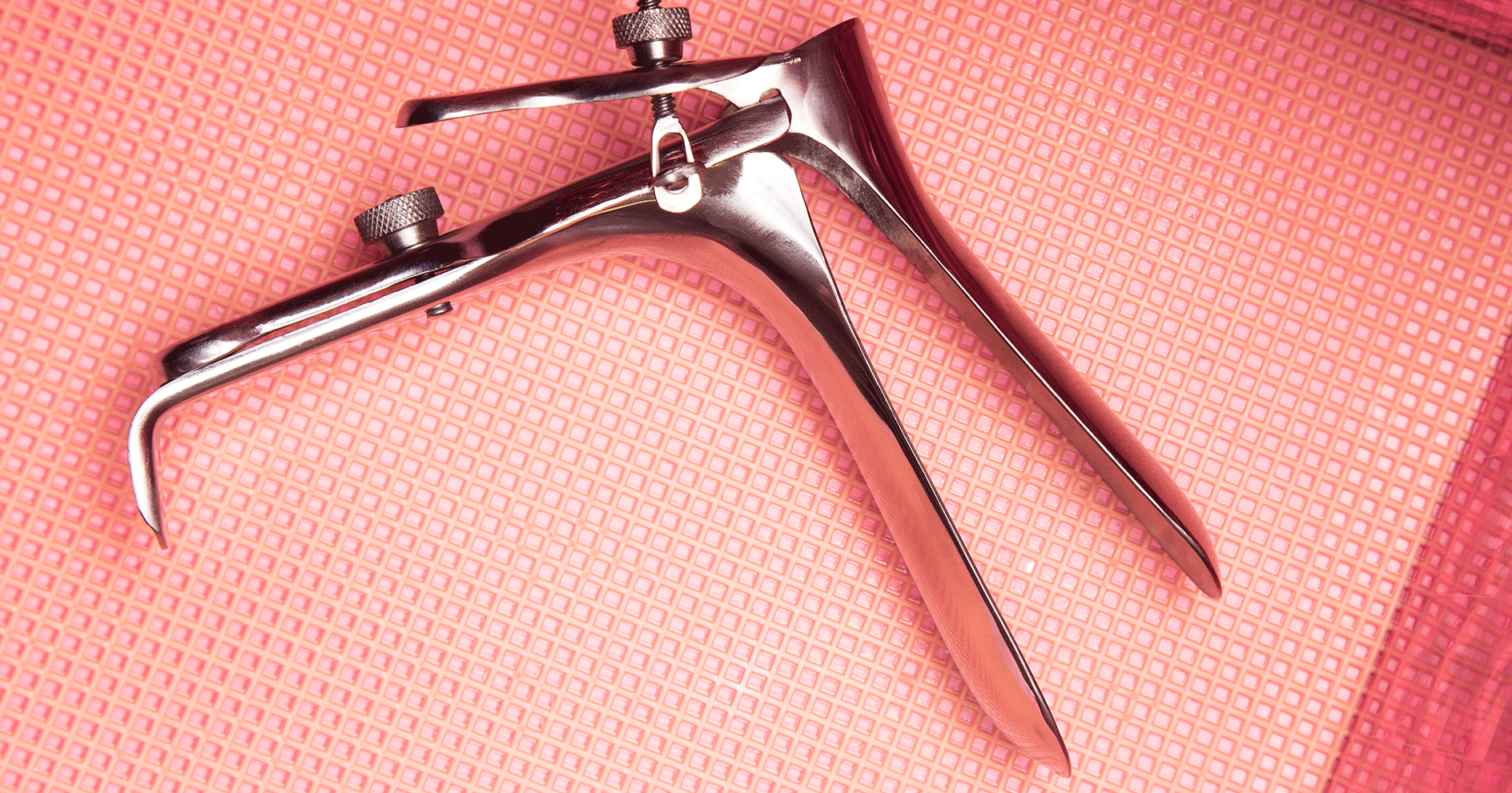 A Guide To Smear Tests & Abnormalities