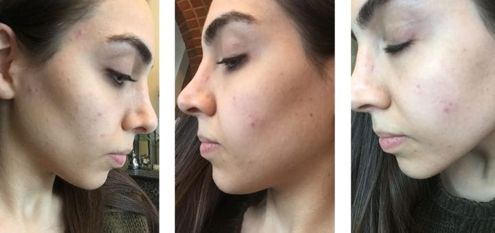 How I Tackled My Hormonal Acne