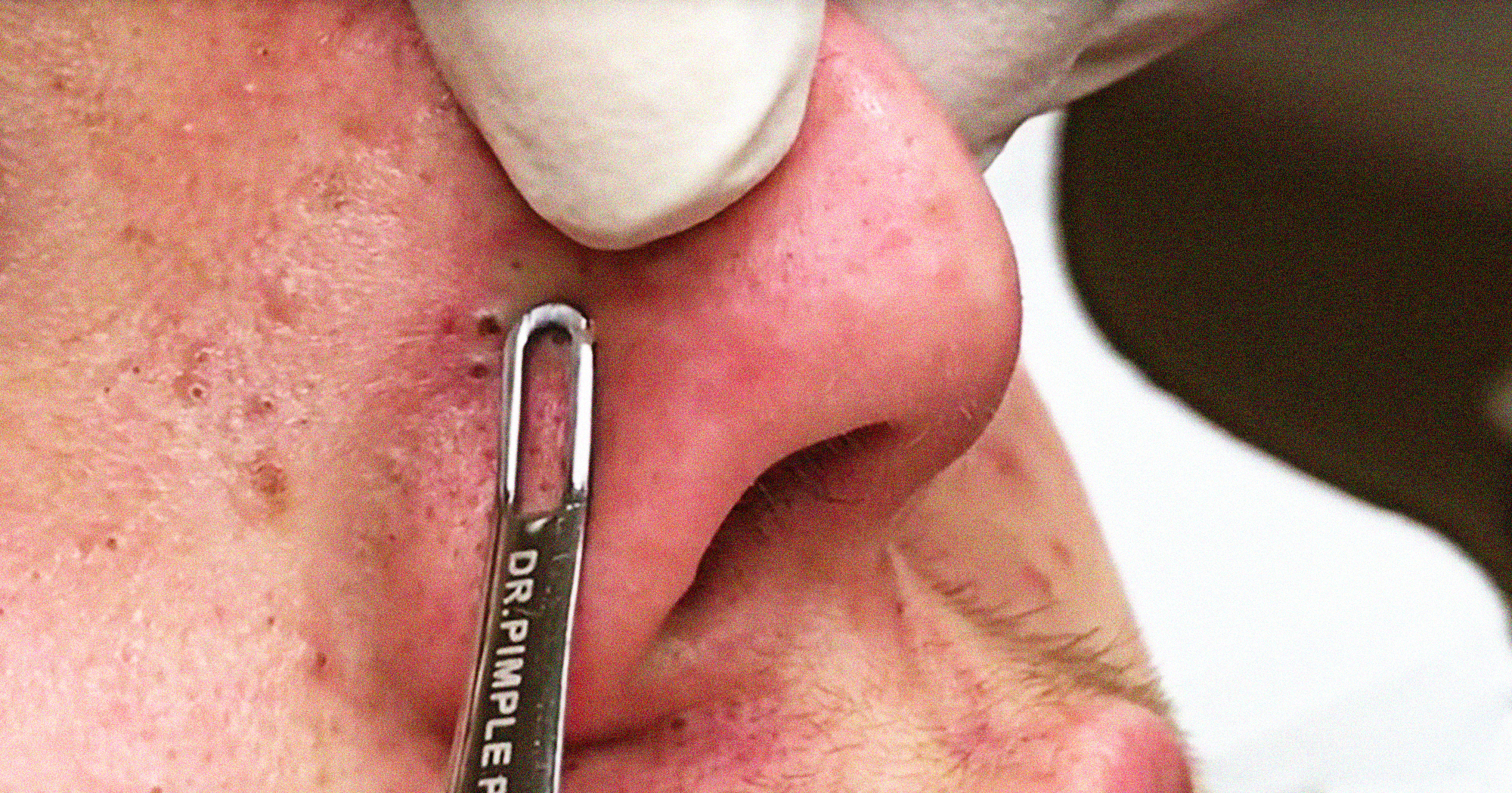 Best Dr Pimple Popper Blackhead Extraction Videos Ever