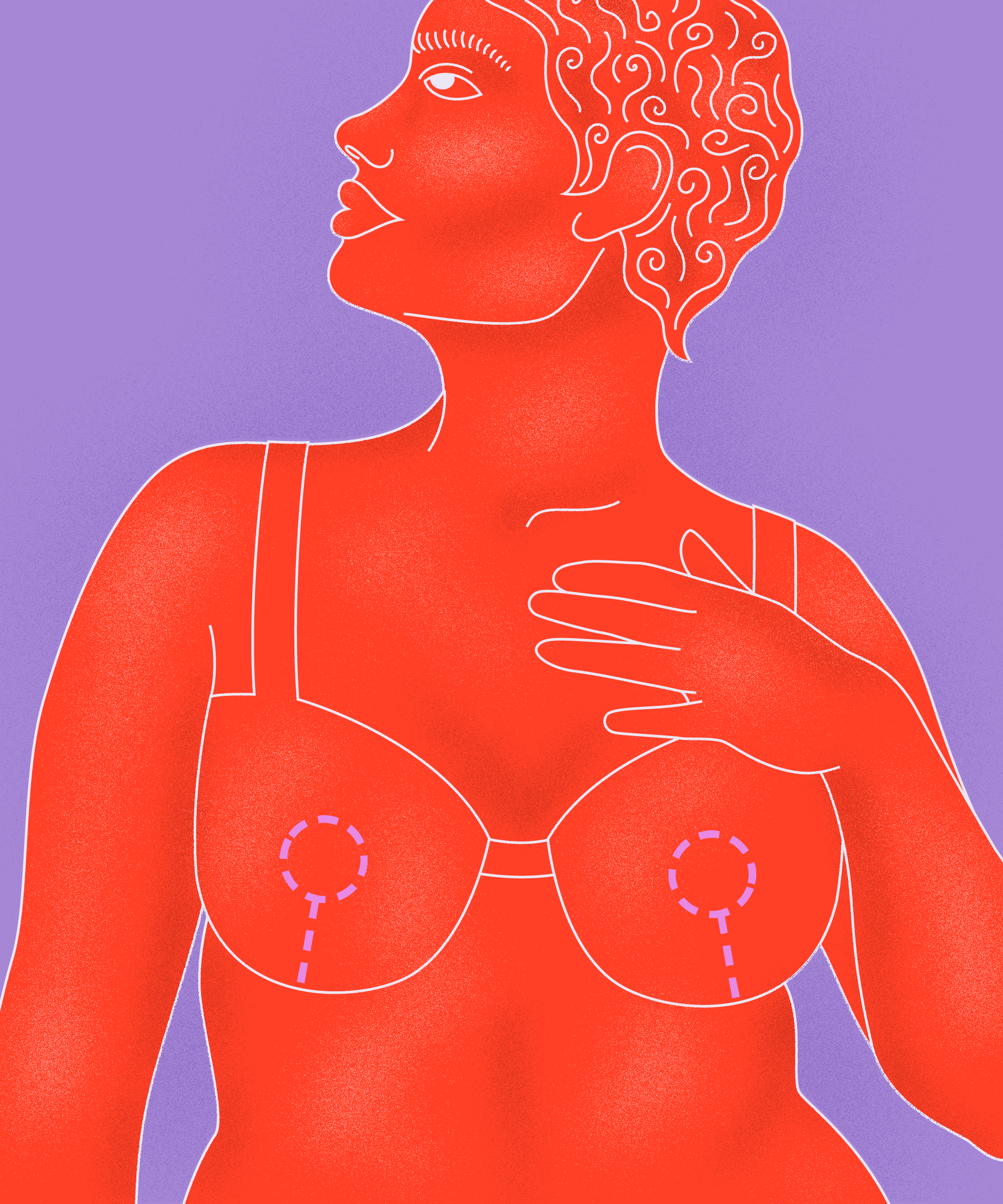 I Got A Double Mastectomy & Breast Implants At Age 31