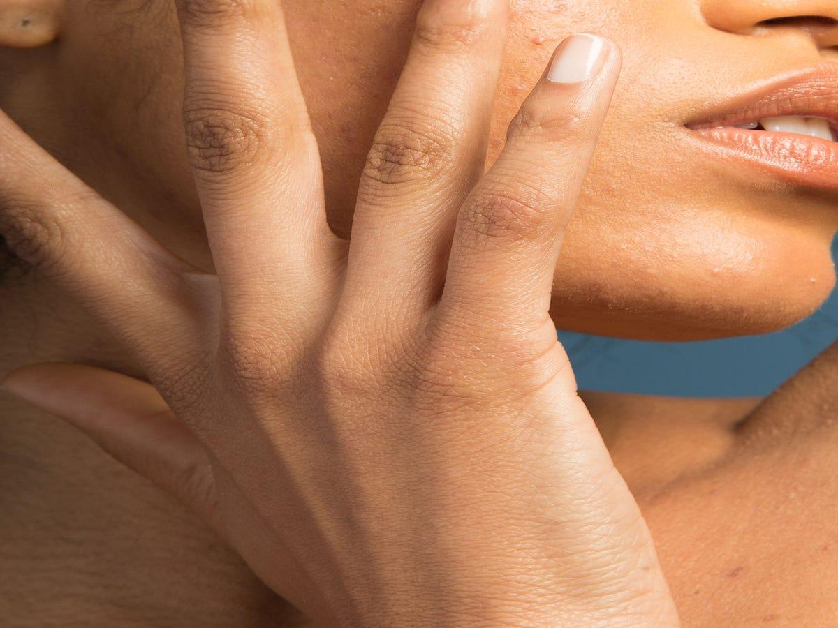 The Eczema Treatments Dermatologists Always Recommend