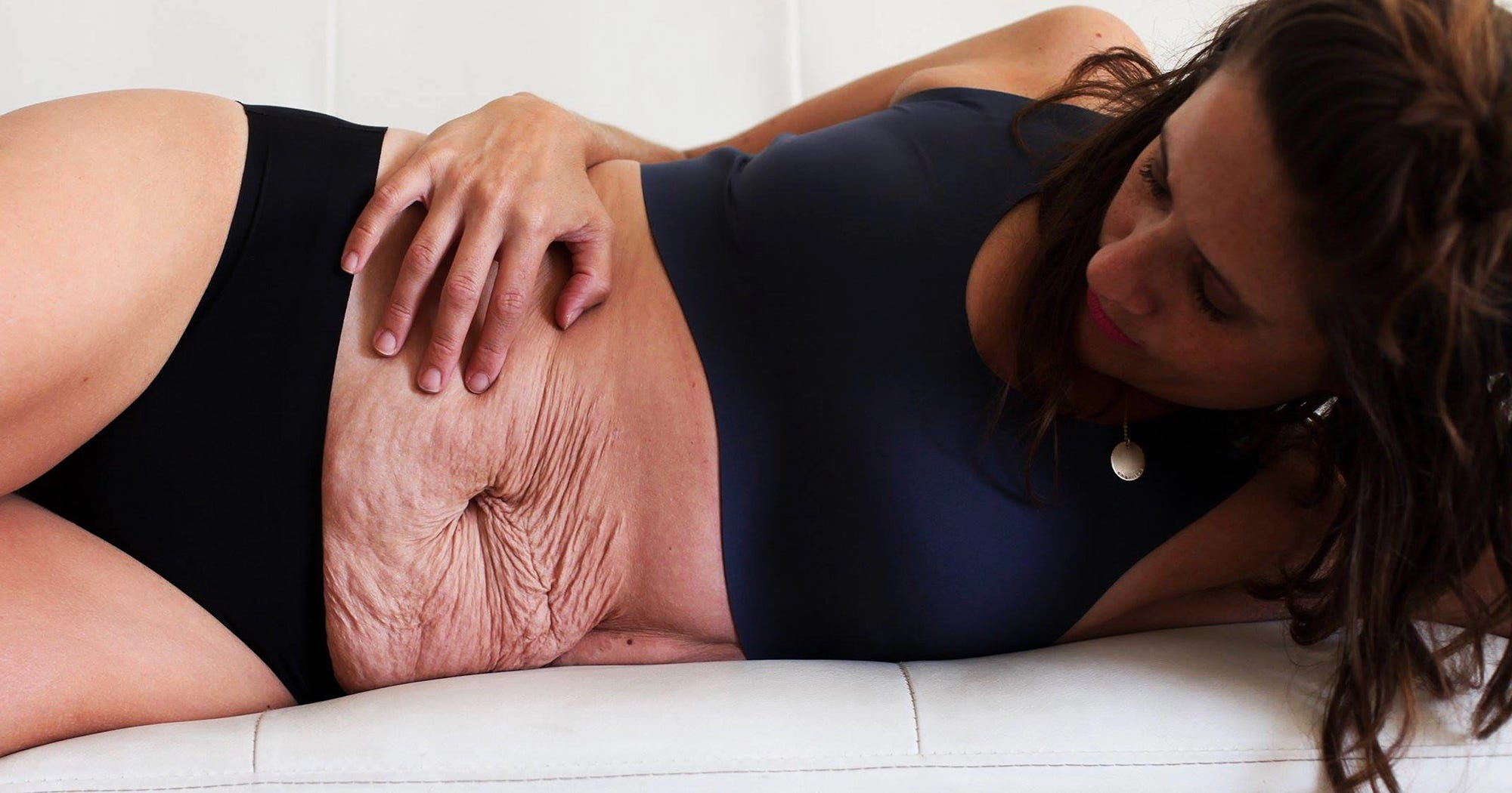 These Photos Celebrate The Beauty Of Postpartum Bodies