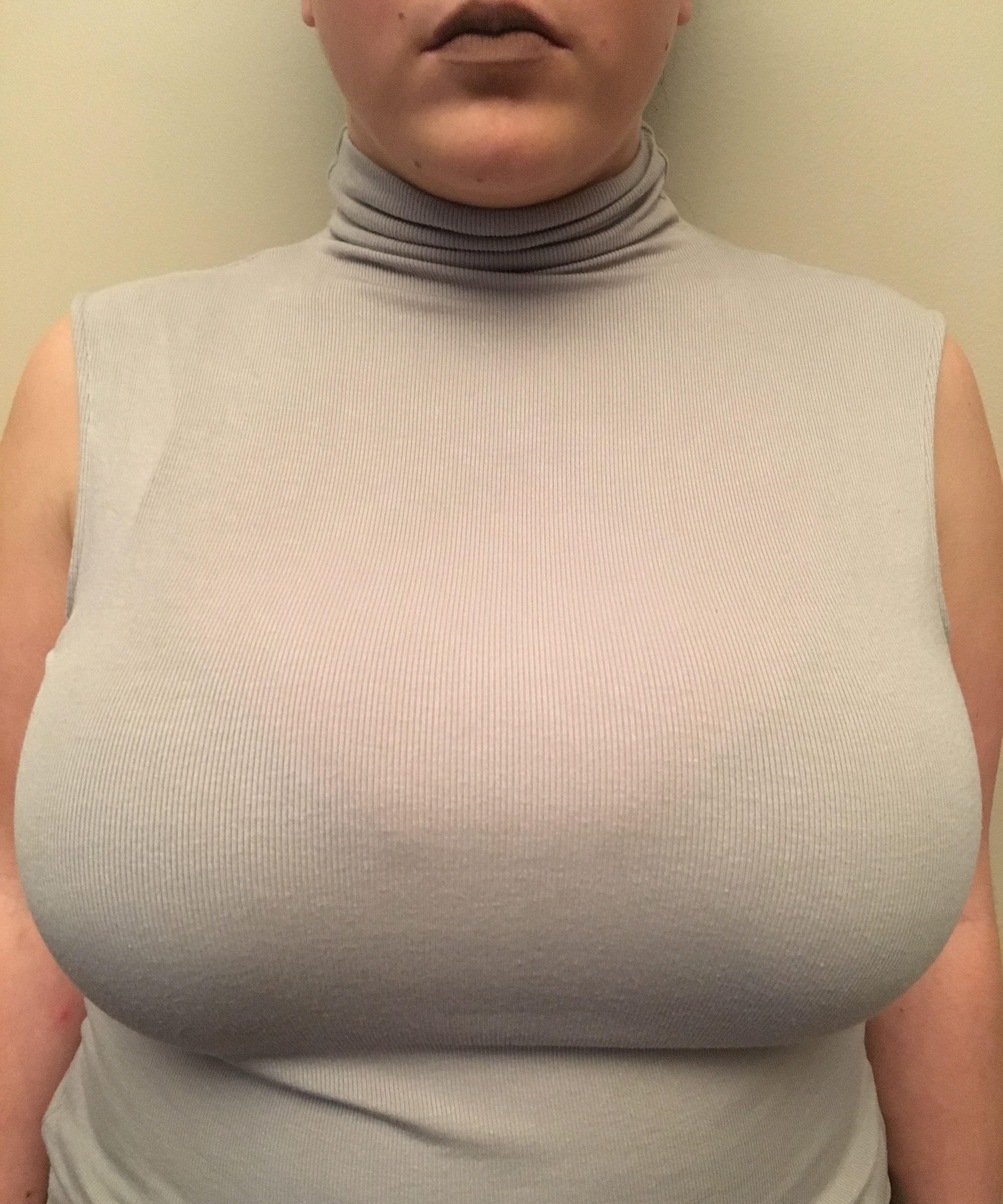 dd24578f235c1 Breast Reduction Before And After Experience Essay