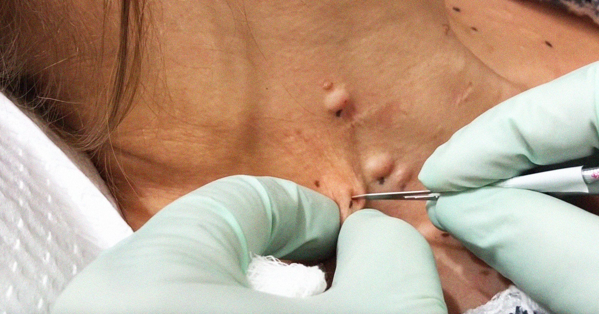 Dr  Pimple Popper Says This Is The Most Intense Surgery She's Performed All  Year