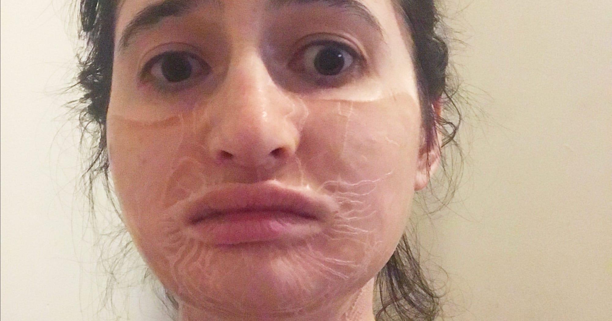 Hanacure Face Mask Skin Tightening Effect Photos