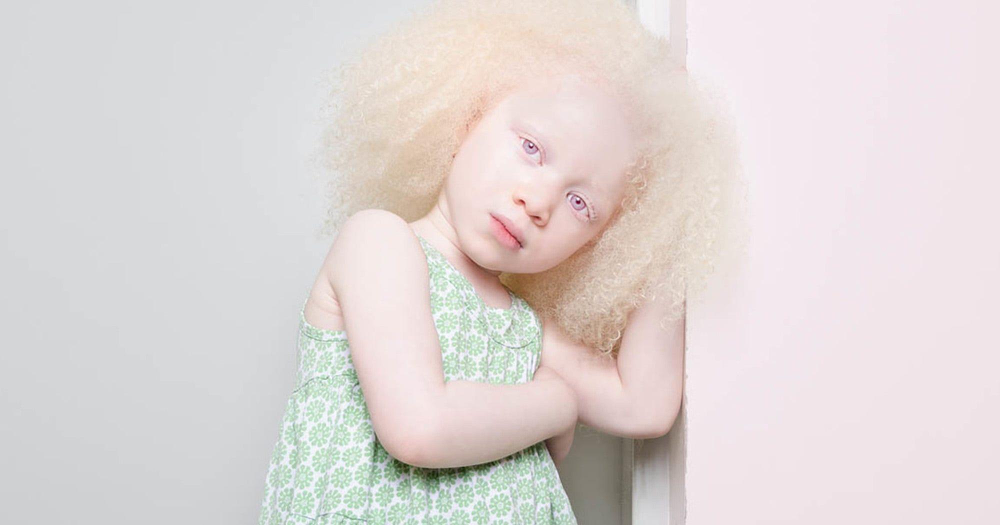 Porträtfotos von Menschen mit Albinismus