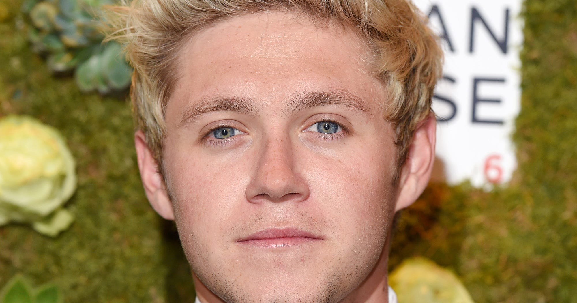 Harry Styles Natural Hair: Niall Horan Brunette Bleach Blonde Before After Photos