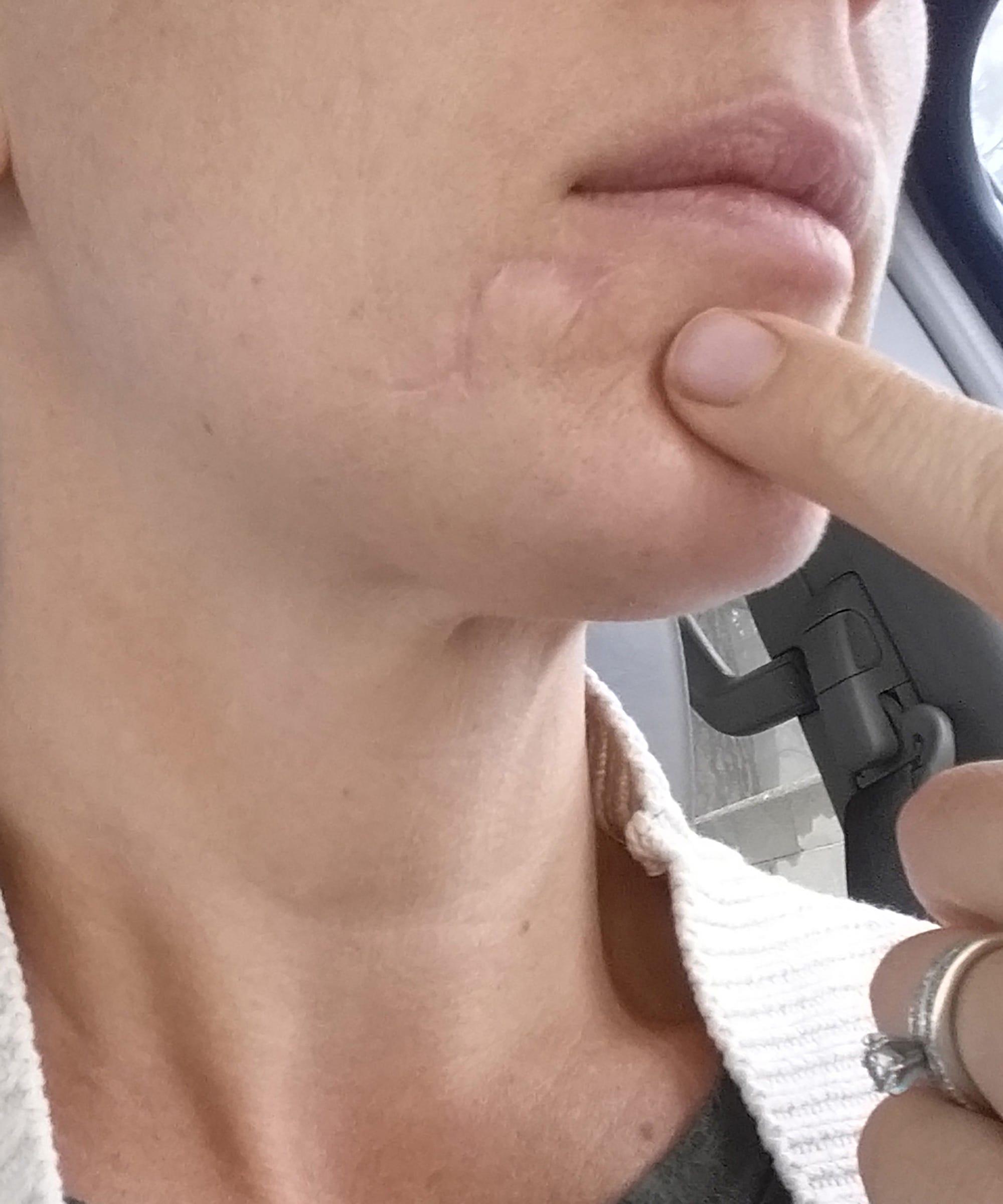 Blackhead Turned Skin Cancer Signs Symptoms Carcinoma