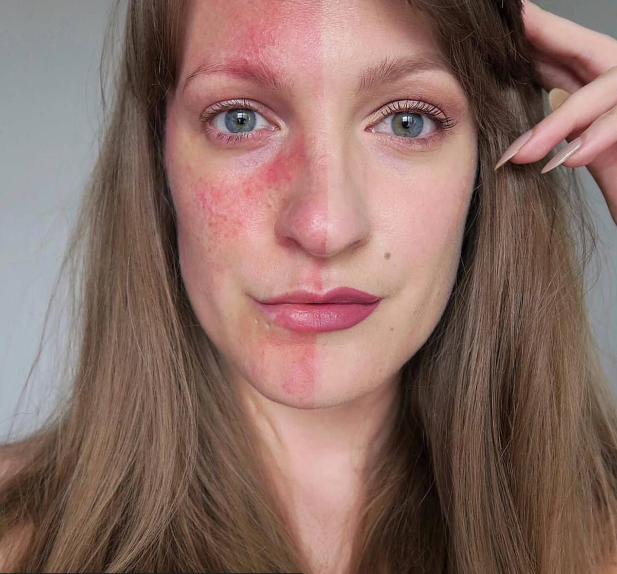 Best Rosacea Skincare Routine Products: Cleanser, Cream